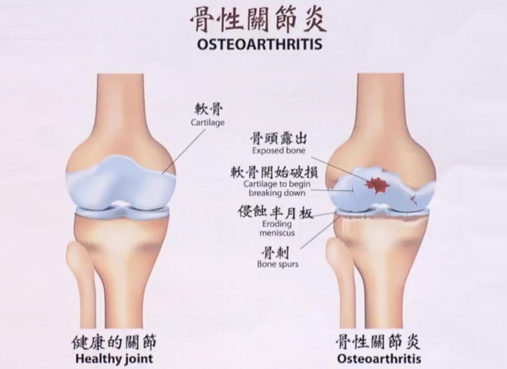 關節炎成因分兩類