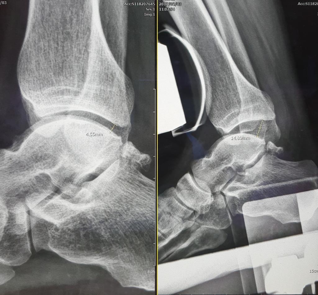 踝關節扭傷的診斷