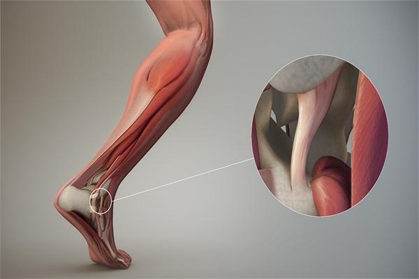 韌帶是堅韌的組織