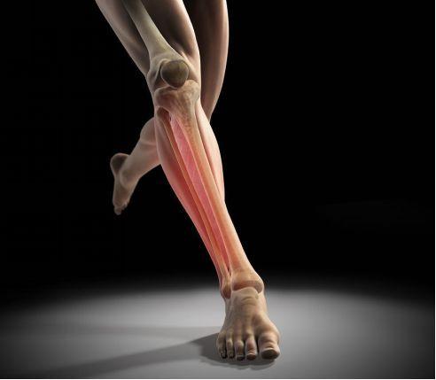 脛骨骨膜炎-治療