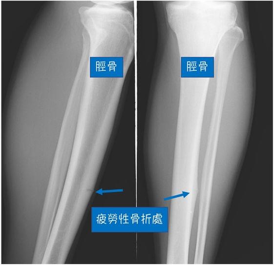 脛骨的應力性骨折
